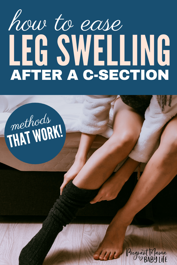 Leg swelling after a c-section