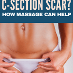 Struggling with painful scar tissue after a c-section. Even years later this can be an issue for many moms. Here's how you can help decrease the pain.