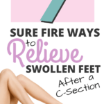 Sure fire ways to relieve swollen feet after a c section